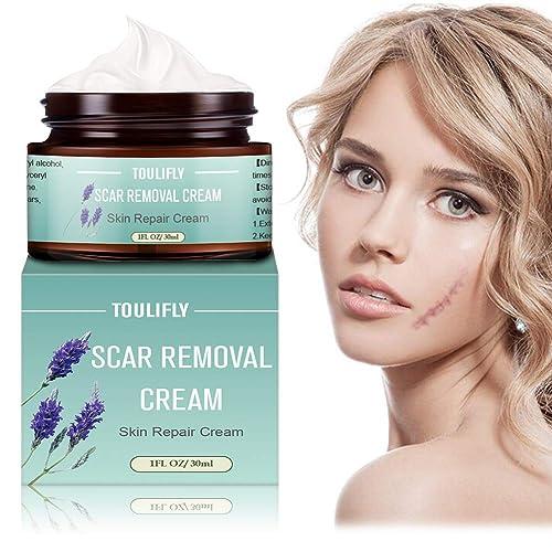 Scar Removal Cream Scar Cream Gel Scar Repair Cream Acne Scar
